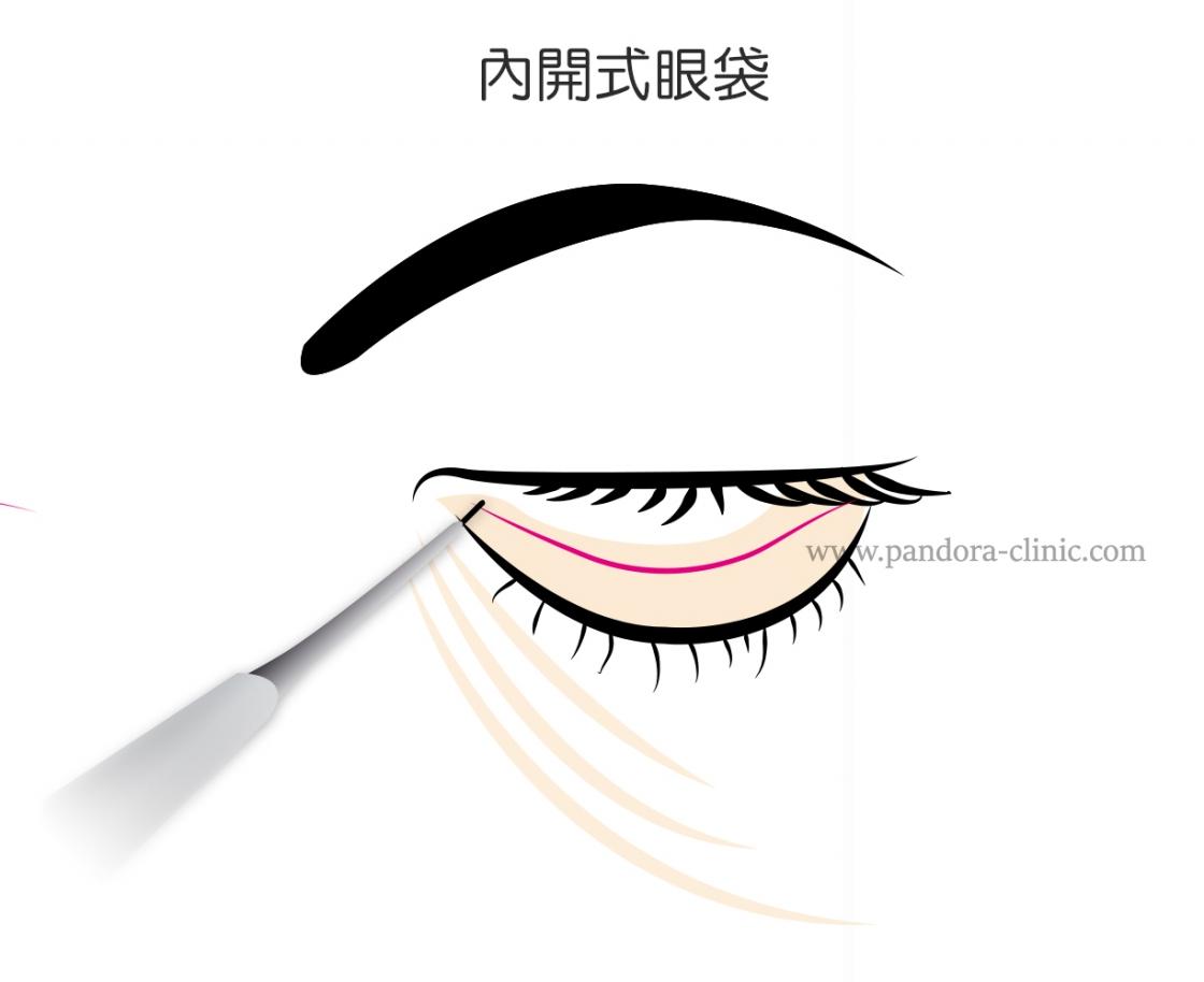 內開式眼袋