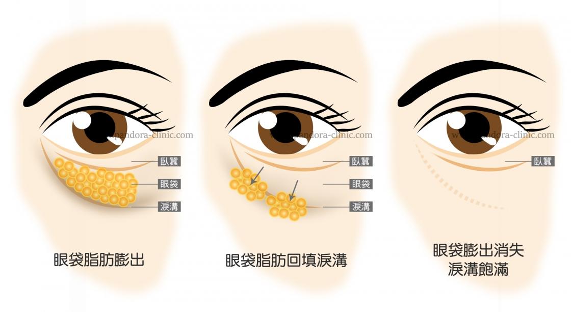 眼袋,眼袋手術,眼袋價錢,眼袋價格,眼袋費用,眼袋整形